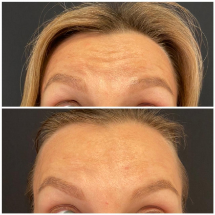 Ботокс в лоб, результат до и после процедуры